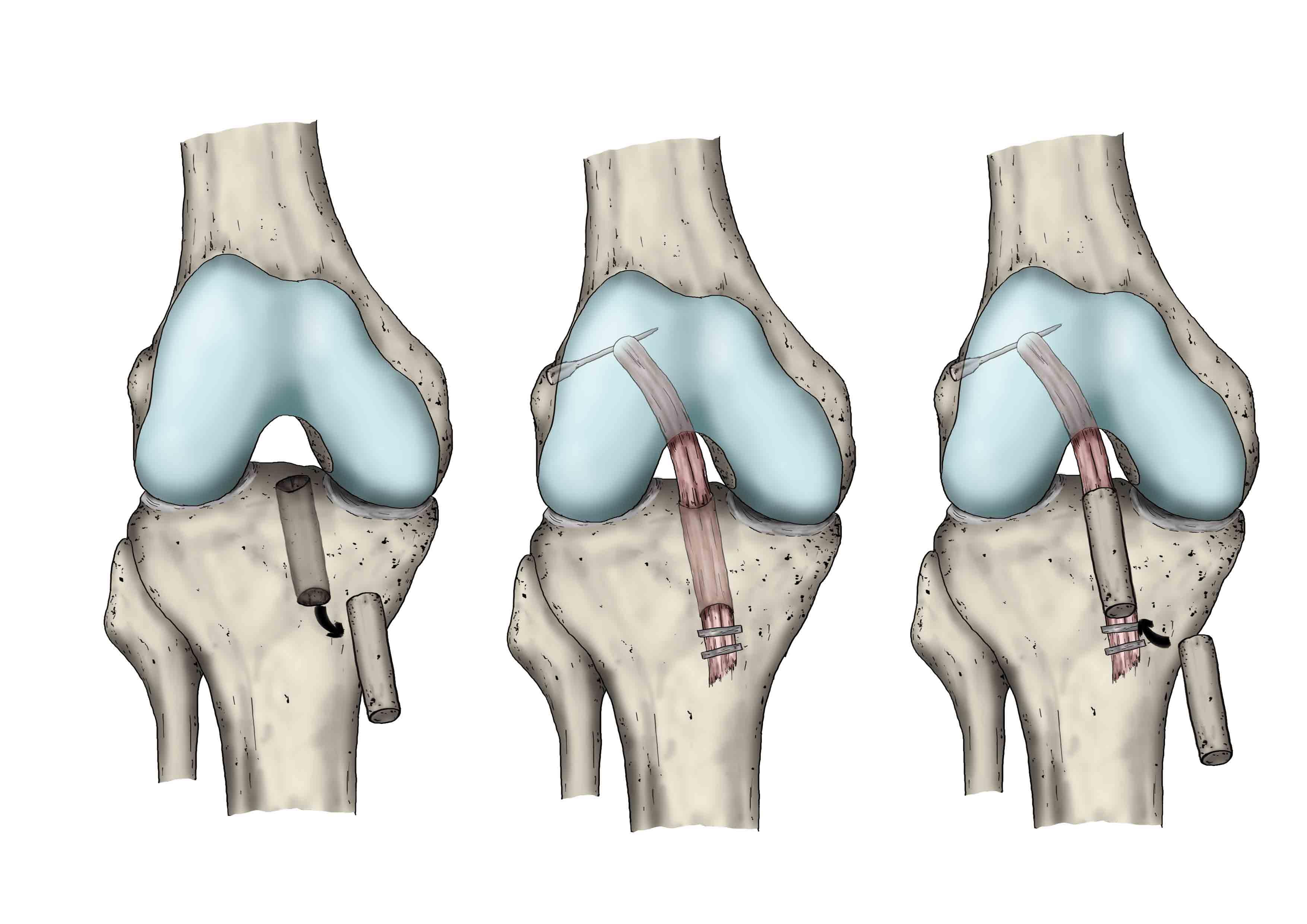 Rodilla | Patologías | Unidad de Cirugía Artroscópica