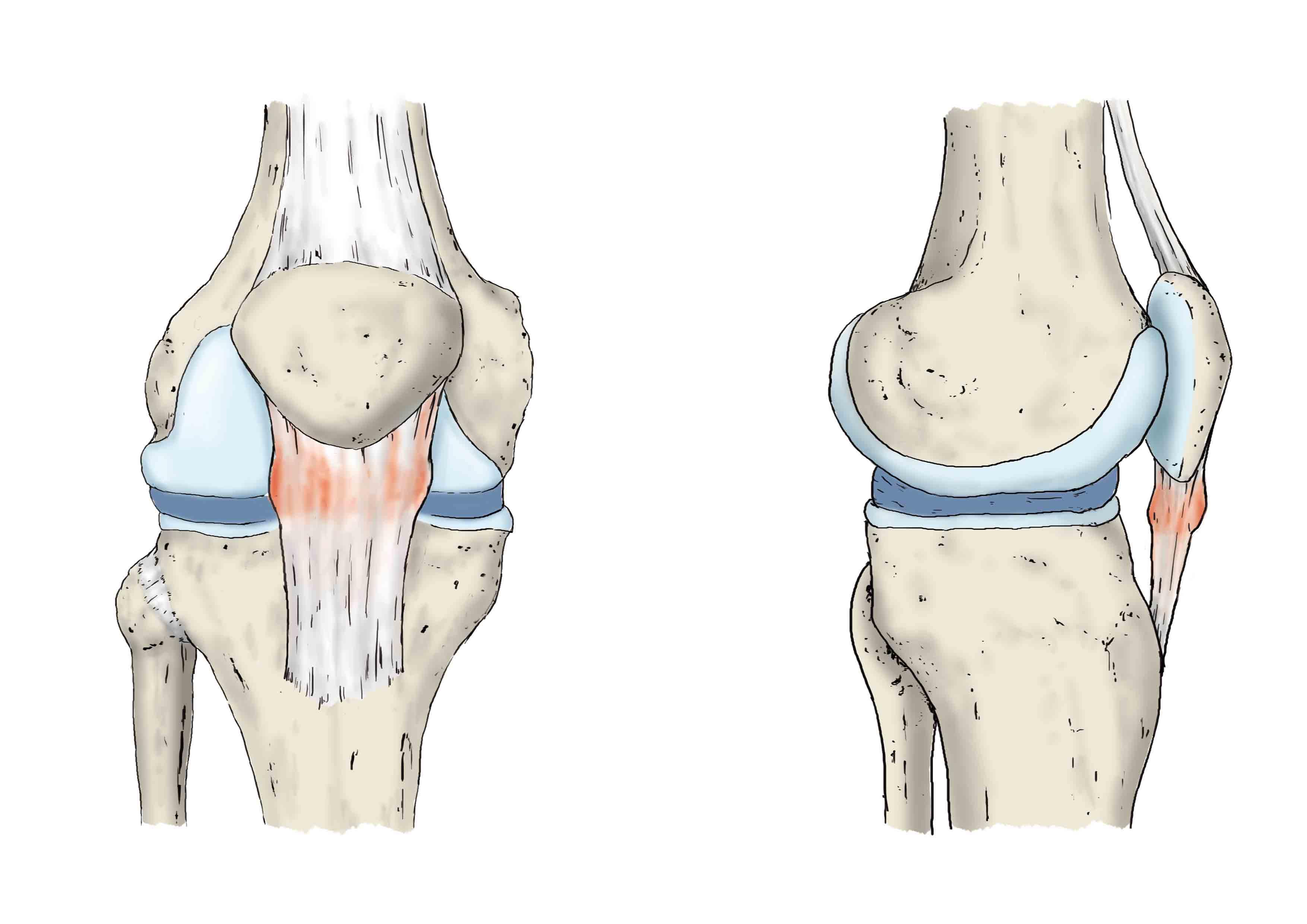 Rodilla Patologías Unidad De Cirugía Artroscópica